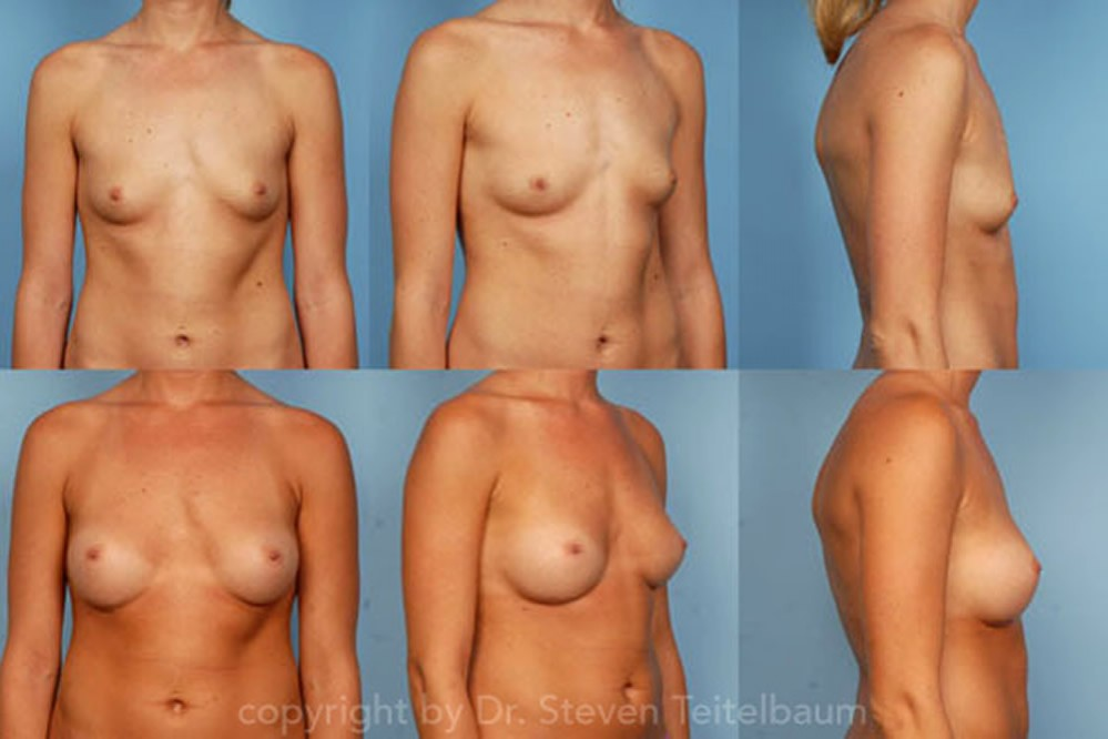 breast asymmetry correction with cohesive gel implants