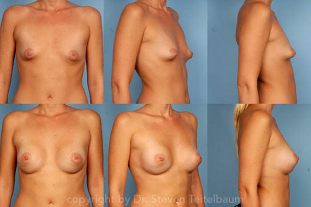 Nude wife forum