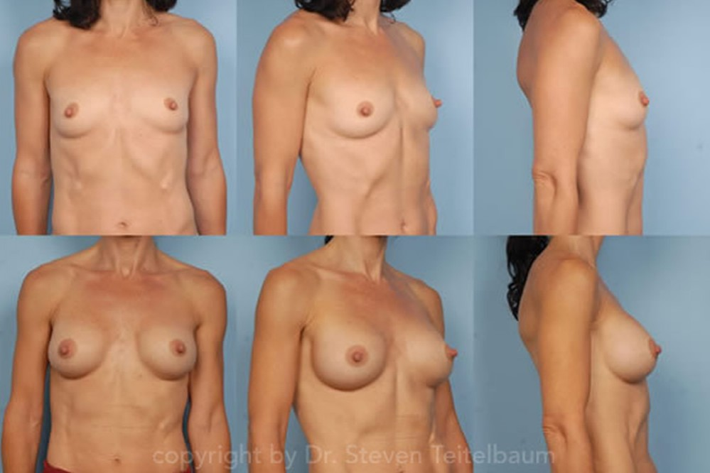 Eastern Tn Breast Augmentation Blog 69